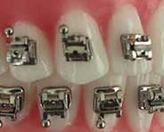 Self-ligating Braces - Orthodontic Center of Orange County
