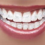 Clear Ceramic Braces - Orthodontic Center of Orange County