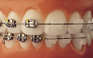 Clear vs. Metal Braces