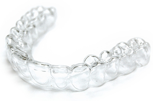 Vivera and Invisalign Retainer